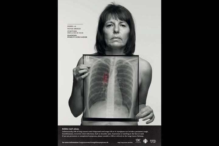 Lung Cancer 'See through the Symptoms' - Design for good - Engine Creative